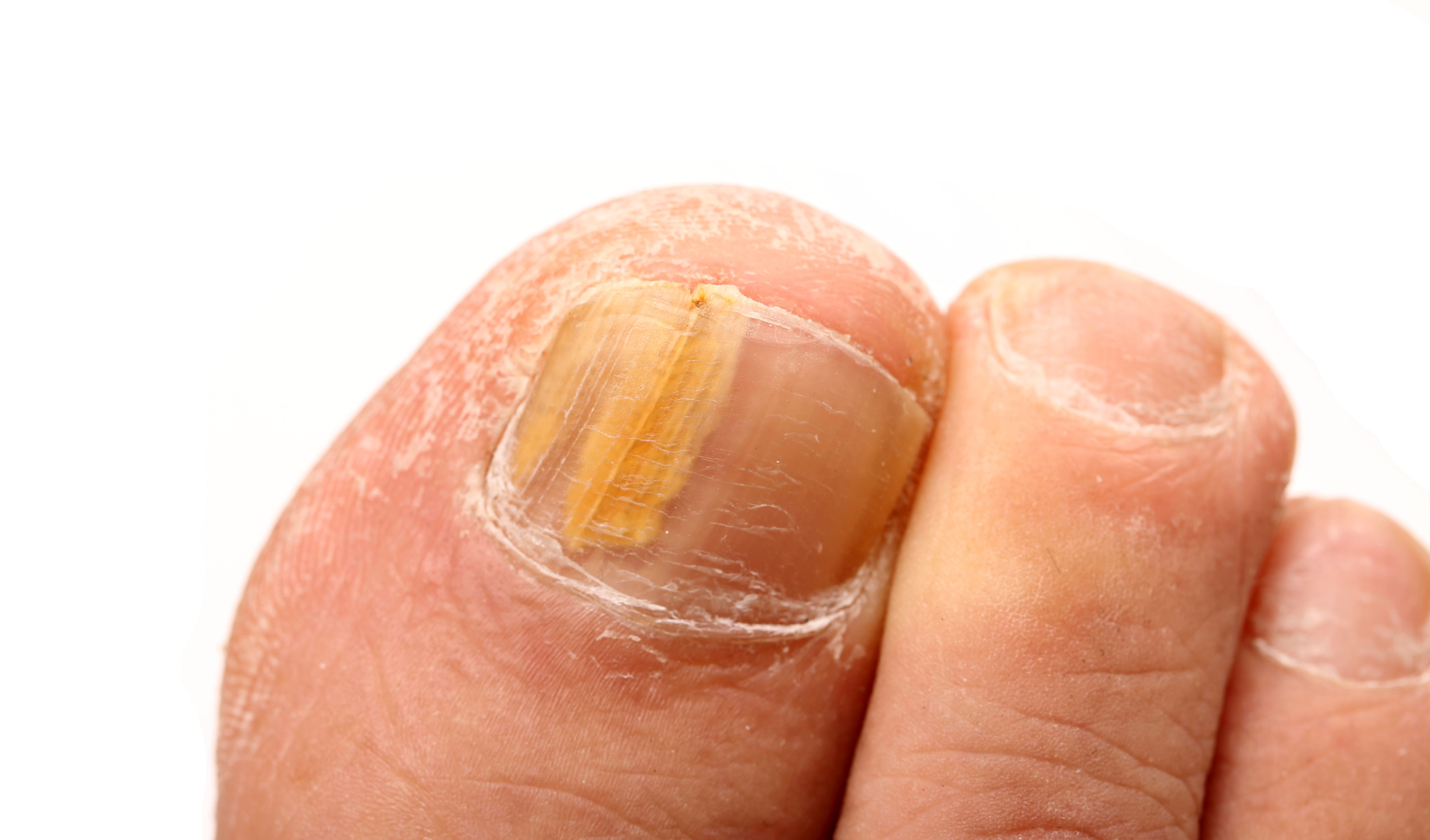 Fungal nail infection - Footwork